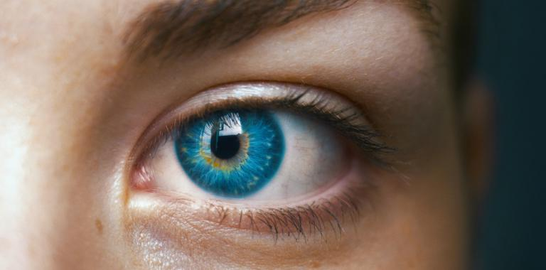 Síndrome de Waardenburg, ojos azul intenso