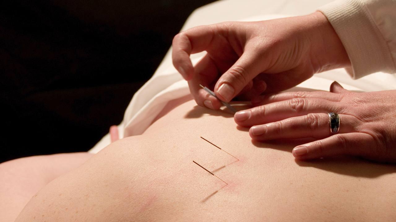 La acupuntura, medicina tradicional china que restablece la energía corporal
