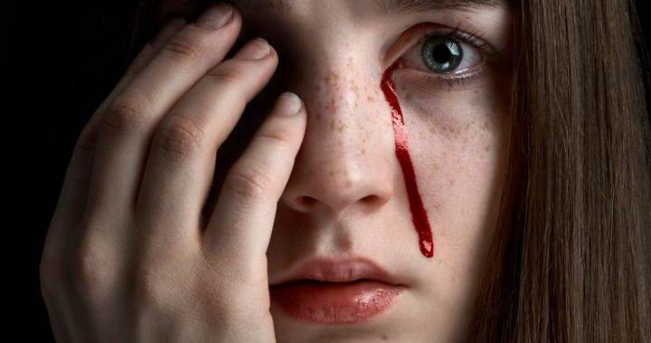 Hemolacria, por qué es posible llorar sangre